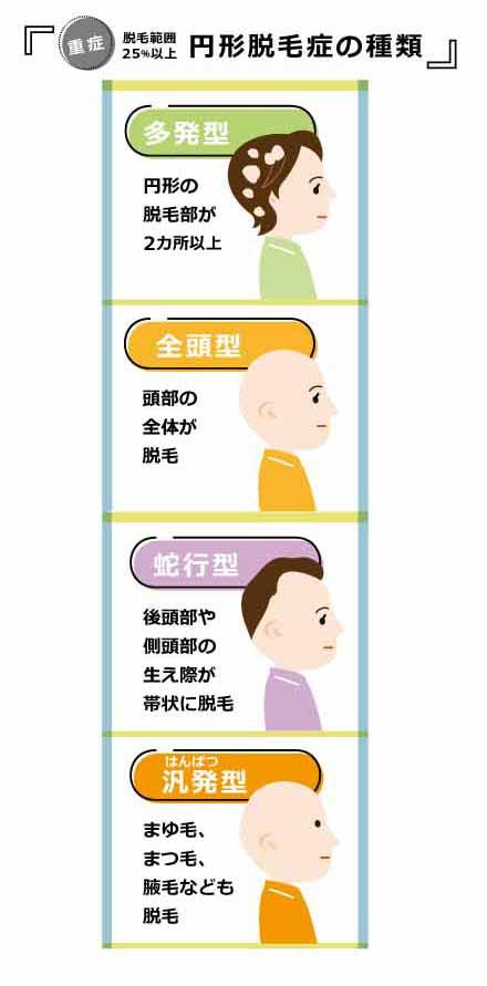 円形脱毛症の重症